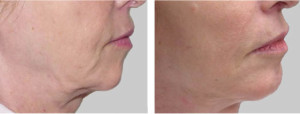 exilis-skin-tightening-jowls-patient-before-after